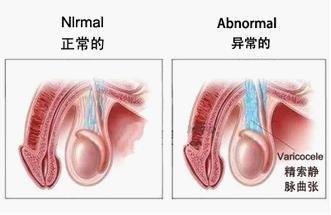 精索静脉曲张的症状有哪