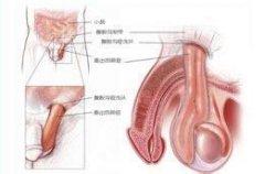 精囊炎的原因有哪些呢