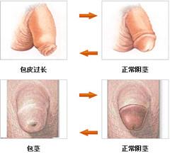 阳江割包皮会影响工作吗